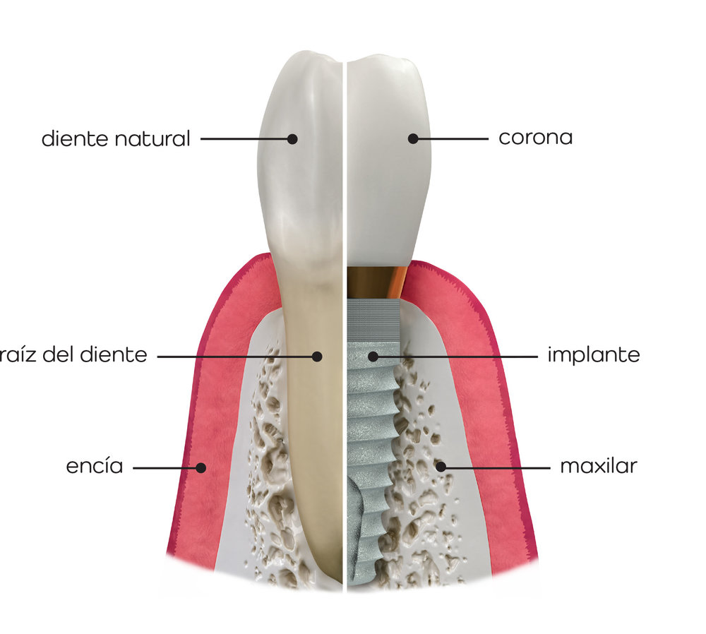 clinica-dental-patricia-clinica-dental-getafe-dentista-getafe-implantologia-oral-getafe