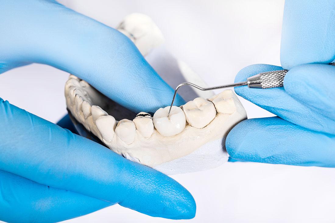 clinica-dental-patricia-clinica-dental-getafe-dentista-getafe-protesico-dental-2